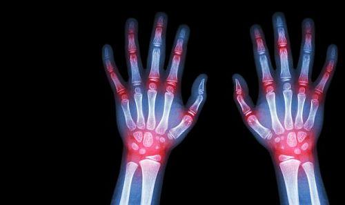 Έλληνες ερευνητές ανοίγουν τον δρόμο για τη θεραπεία της ρευματοειδούς αρθρίτιδας