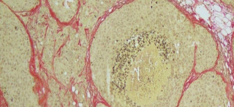 Έρευνα Έλληνα επιστήμονα αλλάζει τα δεδομένα στη μελέτη του καρκίνου του μαστού